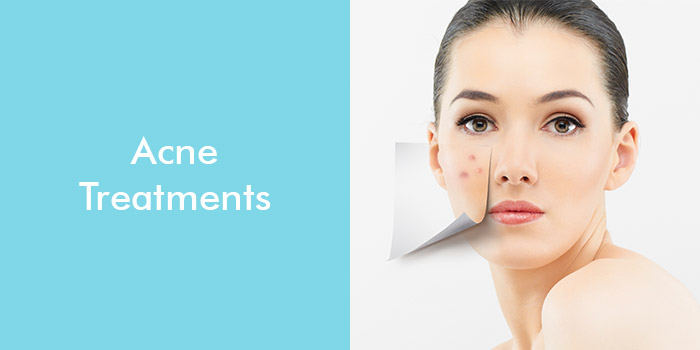 Acne Treatments: Scars Free Skin Home Remedies, Natural Treatments