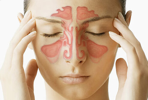 Easy Tips to Get Fast Relief From Sinus Headache at Home